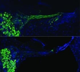 Neurotrophine gen therapie