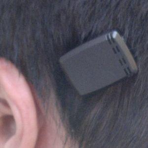 Een BCD van het merk Cochlear