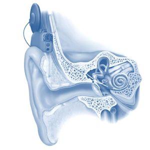 Doorsnede van het buiten-, midden- en binnenoor met implantaat