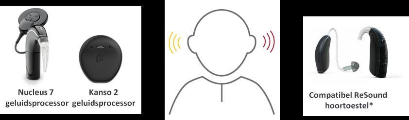 De bimodale hooroplossing met Cochlear